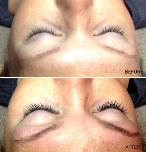 Eyebrows and eyelashes: Before and After